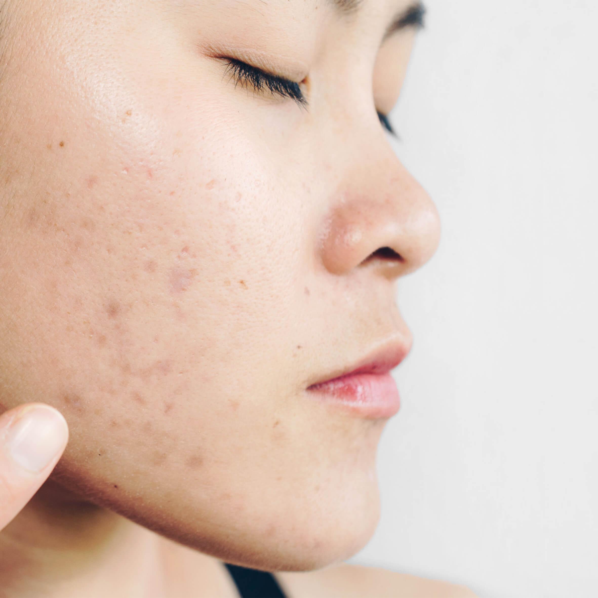 Acne Skin Repair
