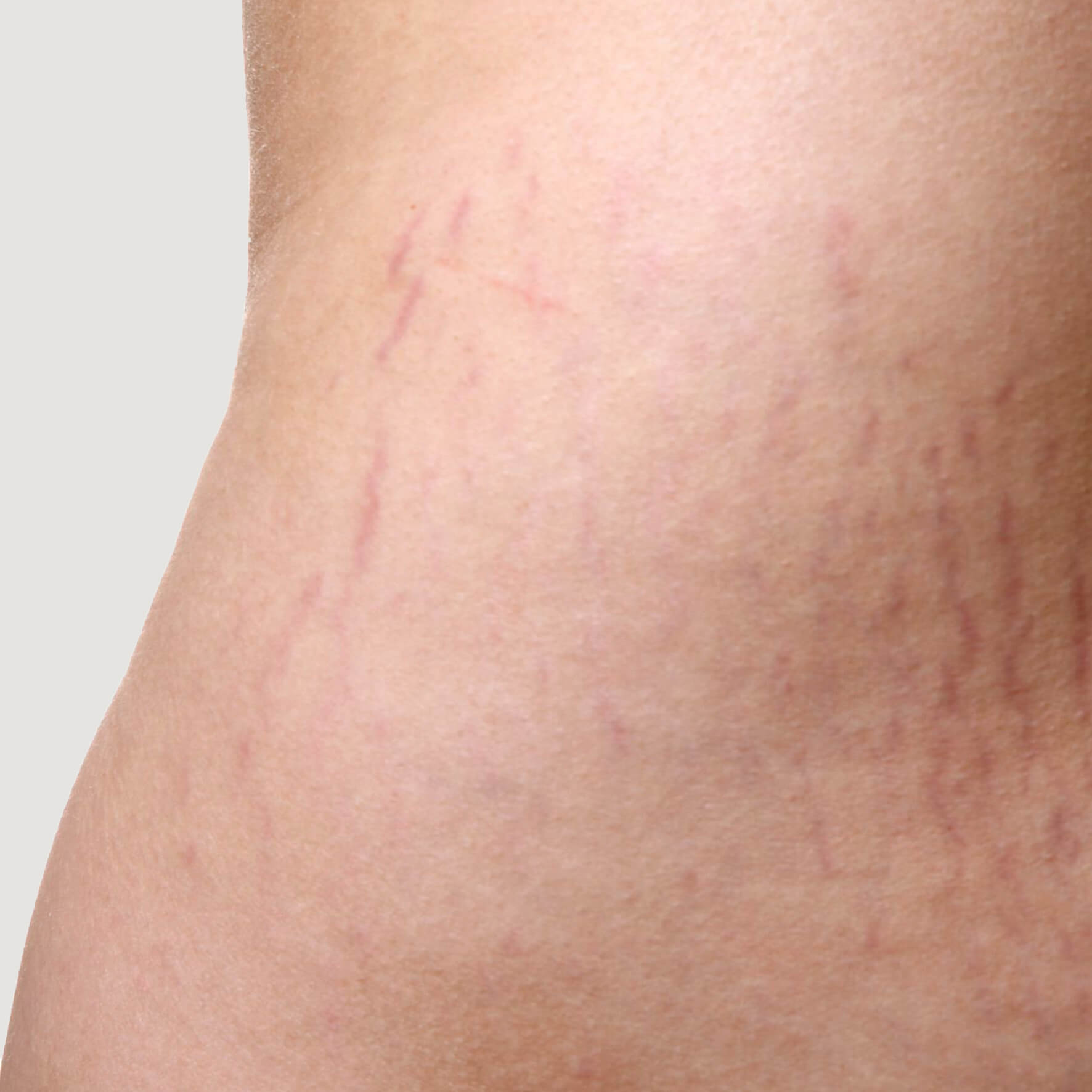 Early Stretch Marks (red/pink)