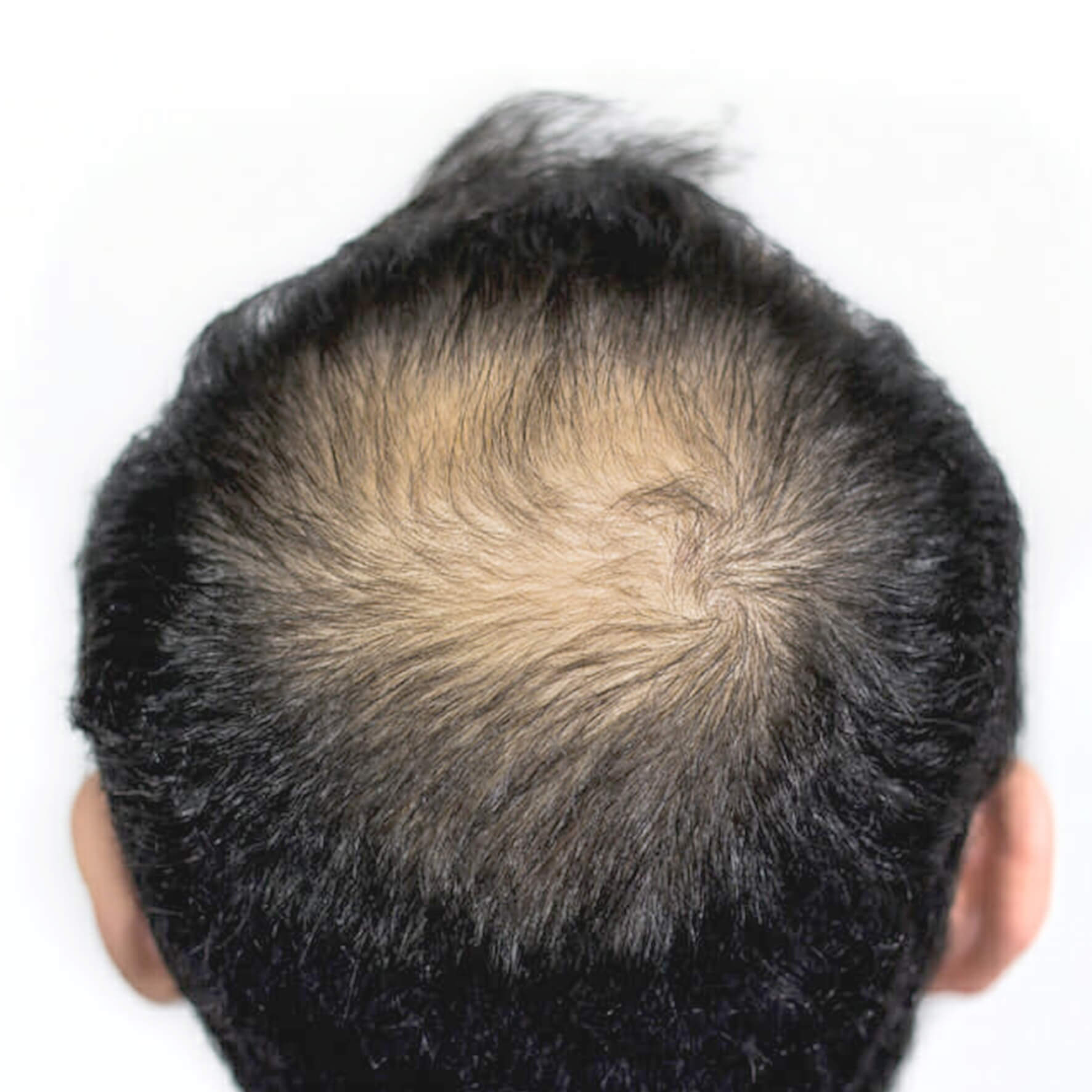 Back of the Head